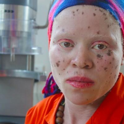 Si Albino di Tanah