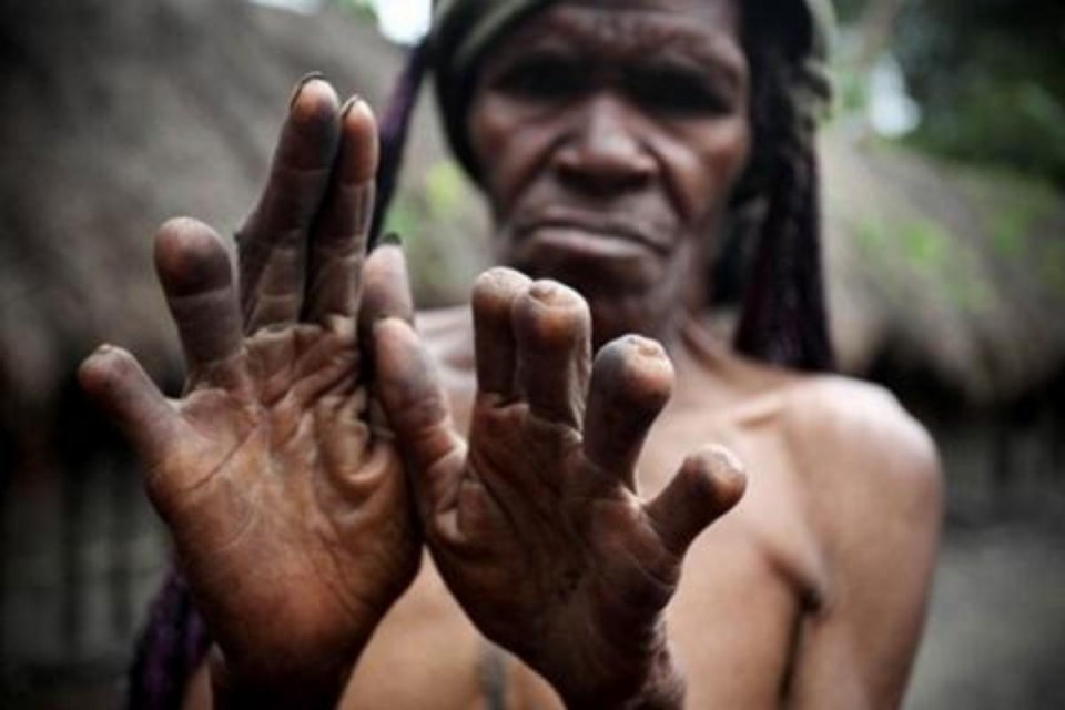 Ekstrim, Suku Dani Papua Punya Tradisi Potong Jari
