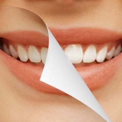 Pengen Gigi Bagus? Nggak Usah Sikat Gigi!